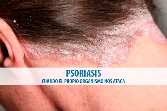 foto-blog-psoriasis